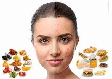mujer con acné debido a la mala alimentación